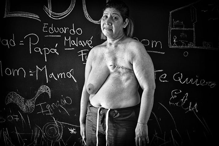 crisis del sistema de salud en Venezuela mortalidad infantil, int6